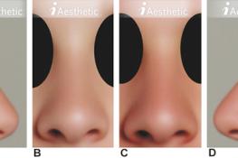 Studie: Nase von Frau und Mann…